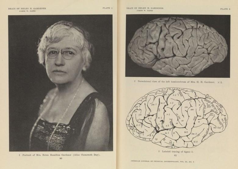 Helen Hamilton Gardener y su cerebro. American journal of physical anthropology