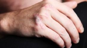Infórmate sobre la psoriasis