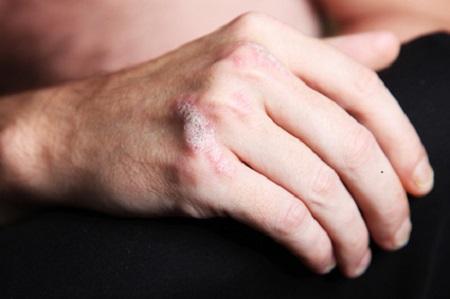 psoriasis - schuppenflechte an der Hand - nahaufnahme