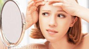 Tratamientos antiacne y postacne
