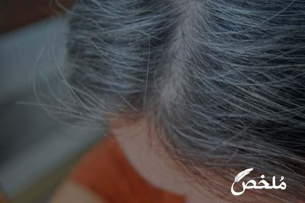 تفسير رؤية الميت شعره ابيض لابن سيرين