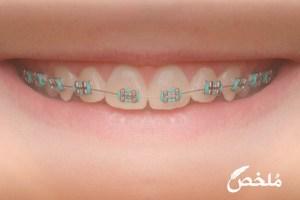 طريقة تركيب تقويم الأسنان في البيت