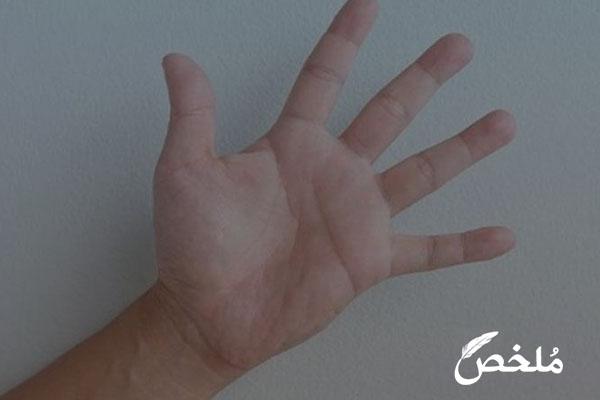 ظهور بقع بنية على راحة اليد