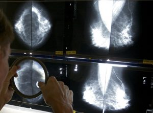 Mammograms_Standards_40501