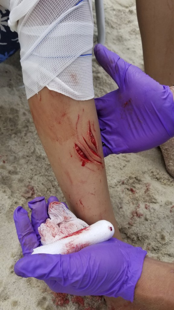 A first responder treats wounds consistent with a shark attack on the leg of Pollina's 12-year-old daughter on Sailors Haven beach at the Fire Island National Seashore on Wednesday.