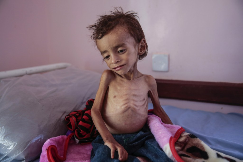 A malnourished boy sits on a hospital bed last month at the Aslam Health Center in Hajjah, Yemen. The U.S. has long remained silent on the war.