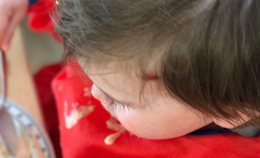 Wenn Kinder stürzen – und wir sie nicht auffangen