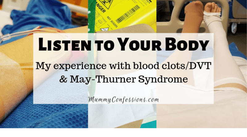 may thurner syndrome experience