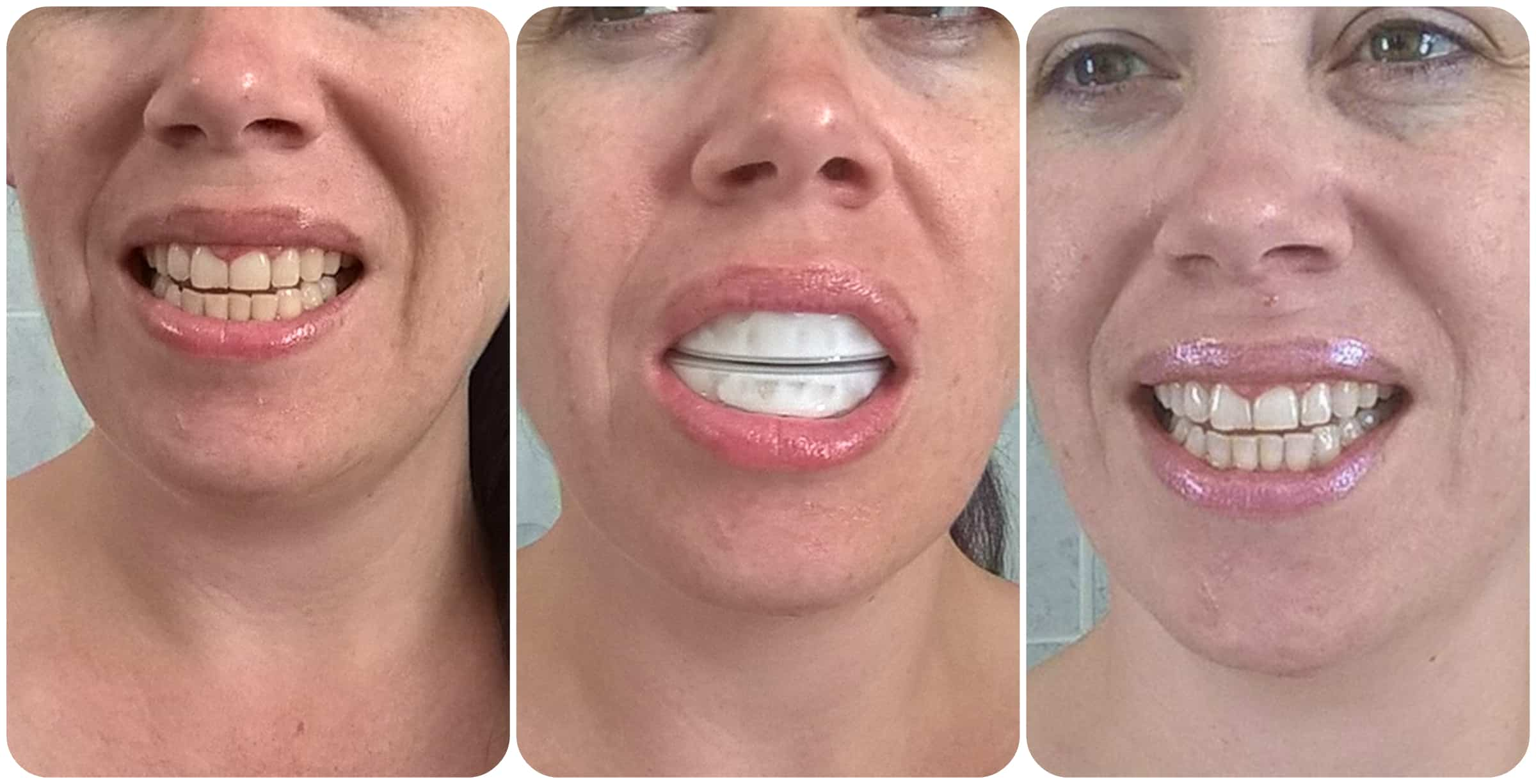 Iwhite Instant Teeth Whitening 2 Review Mummy S Little