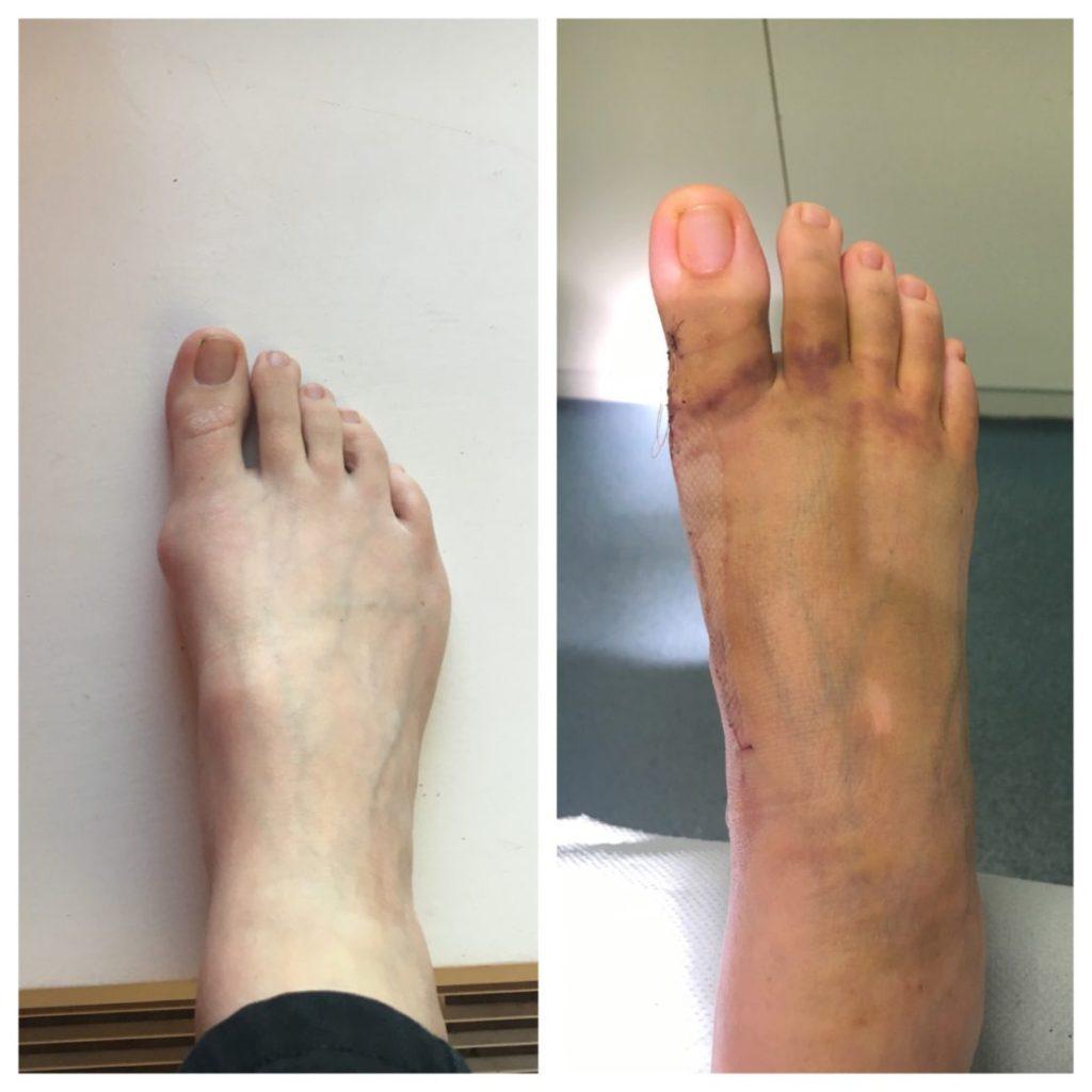 Mid foot fusion