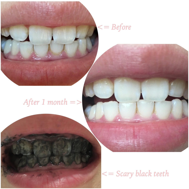 Teeth Whitening Strips Makeupalley Makeup Vidalondon
