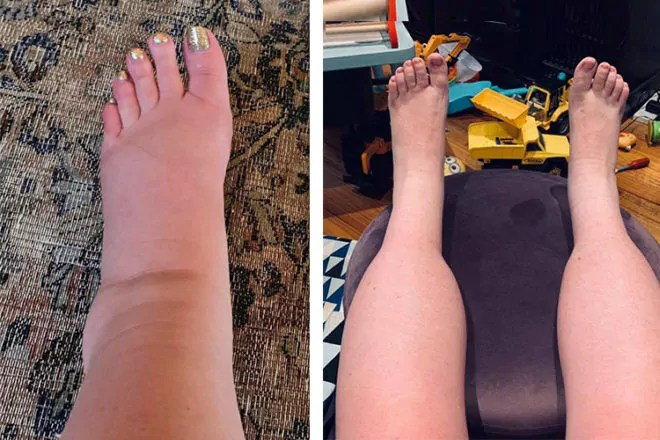 How to ease ankle feet and leg swelling in pregnancy ...