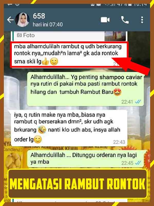 Efek Samping Shampo Kuda : samping, shampo, Bahaya, Shampo, Caviar, Untuk, Kulit, Kepala, Mumtazah