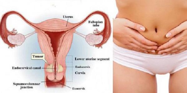 Síntomas del cáncer de útero