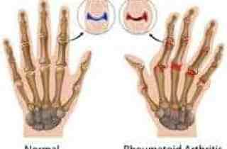 artritis reumatoide en articulaciones de los dedos de las manos
