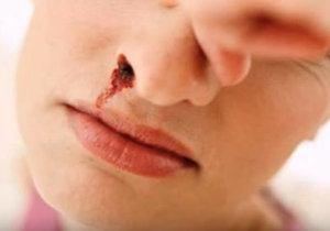 taponarse nariz con los dedos en un sagrado nasal