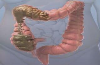 diarrea y intestino