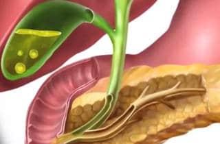 ictericia y pancreas