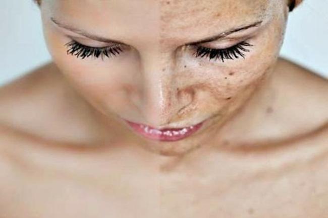 clareador de pele 300x200 - Creme clareador de manchas: Dicas para ter a pele perfeita