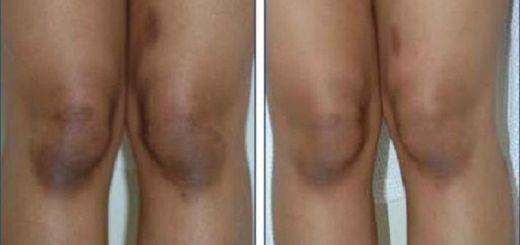 como clarear os joelhos