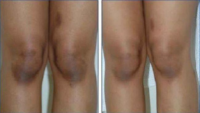 como clarear os joelhos 300x169 - Dicas de Como Clarear os Joelhos