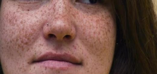 como tirar sardas do rosto