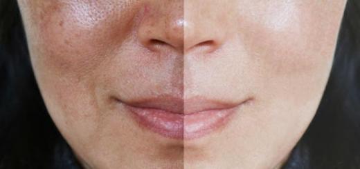 como tirar mancha de melasma do rosto