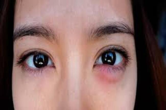o que causa inchaco nos olhos 300x200 - Creme para área dos olhos barato