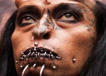 Cirurgia plástica: Top 10 mudanças faciais bizarras