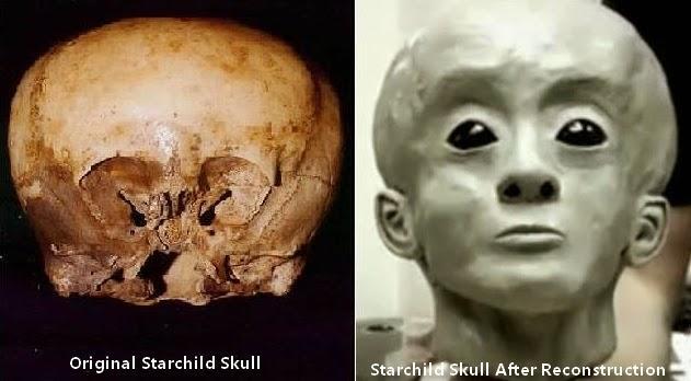 """w7041 - El cráneo """"Starchild"""" El niño de las estrellas."""