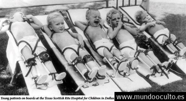 Niños afectados por la epidemia de polio
