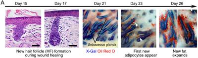 cotsarelis2 medium - Hackean el proceso de cicatrización en la piel para no dejar marcas