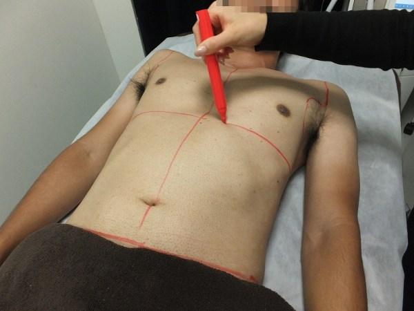 レーザー脱毛:胸毛&腹毛の脱毛範囲