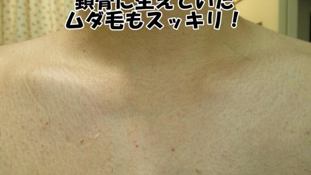 ゴリラクリニックで医療レーザー脱毛3週間後の鎖骨や胸毛の写真