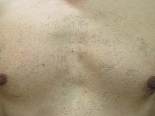 1回目のレーザー脱毛3週間後の胸毛