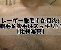 レーザー脱毛(2回目)1か月後!胸毛&腹毛はスッキリ?!【比較写真】