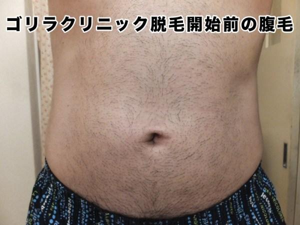 脱毛開始前の腹毛:ゴリラクリニック