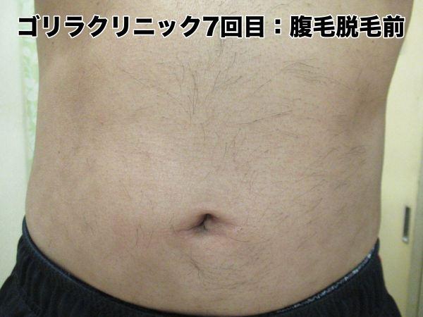 ゴリラクリニック7回目の腹毛脱毛前の状態・様子