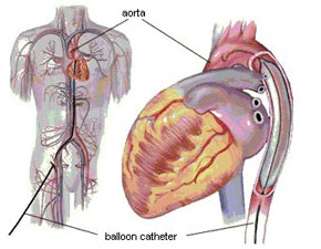 Meta analysis of intra aortic balloon pump (IABP) catheters