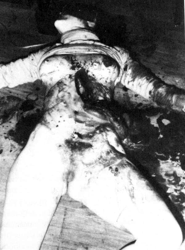 Murderpedia Autopsy Photos : murderpedia, autopsy, photos, Richard, Chase, Photos, Murderpedia,, Encyclopedia, Murderers