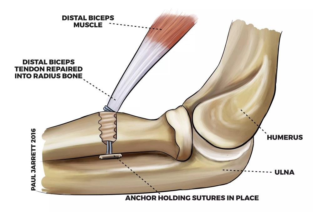 medium resolution of illustration of a distal biceps tendon repair into the proximal radius