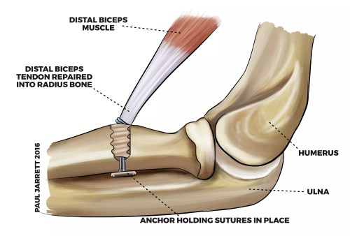 small resolution of illustration of a distal biceps tendon repair into the proximal radius