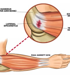 illustration of tennis elbow [ 3042 x 2333 Pixel ]