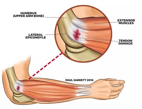 small resolution of illustration of tennis elbow