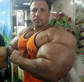 synthol arms