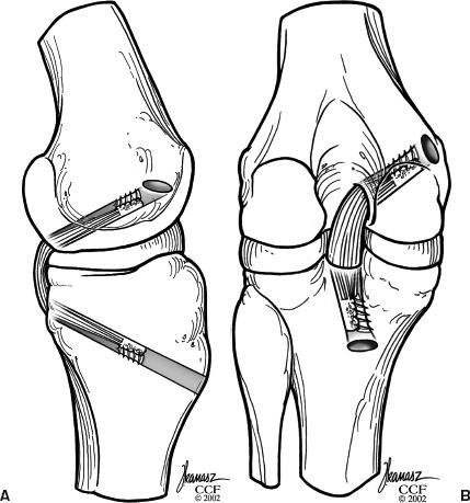 Posterior Cruciate Ligament Reconstruction Using Bone