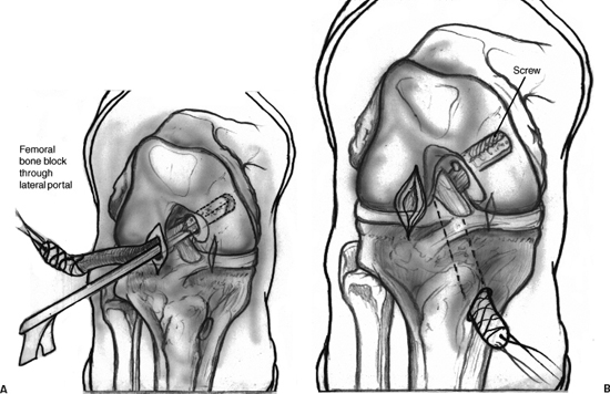 Posterior Cruciate Ligament Reconstruction with Achilles