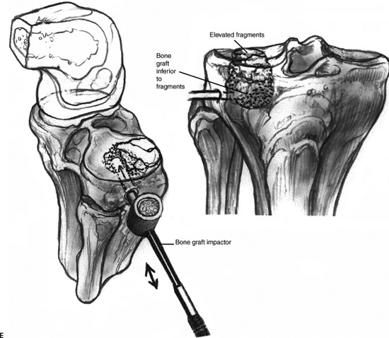 Arthroscopic Treatment of Lateral Tibial Plateau Fractures