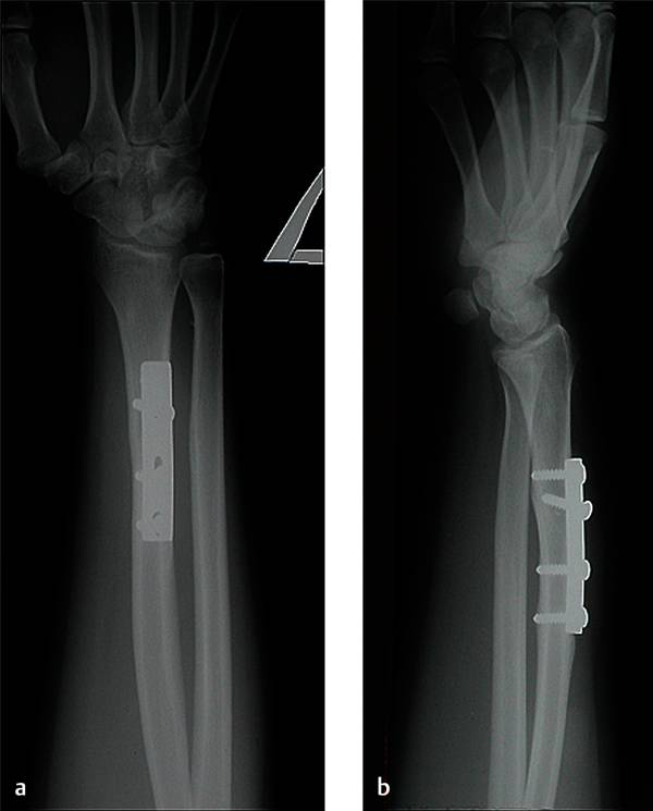 Galeazzi Fracture-dislocation | Musculoskeletal Key