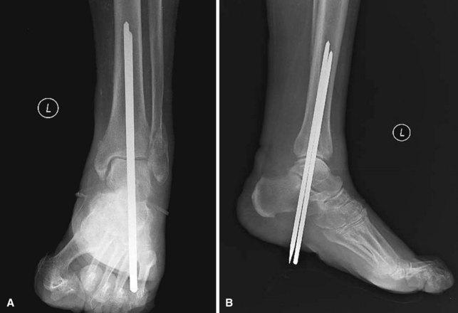 Diabetic Foot Musculoskeletal Key